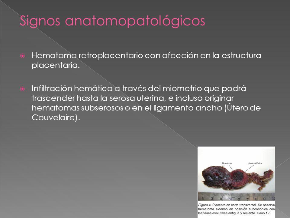 Signos anatomopatológicos