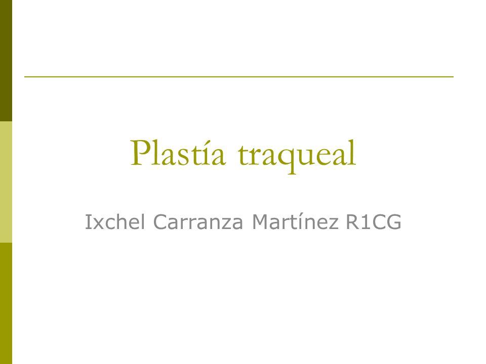 Ixchel Carranza Martínez R1CG