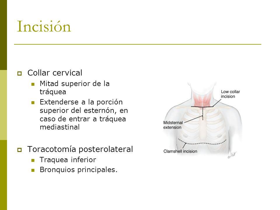 Incisión Collar cervical Toracotomía posterolateral