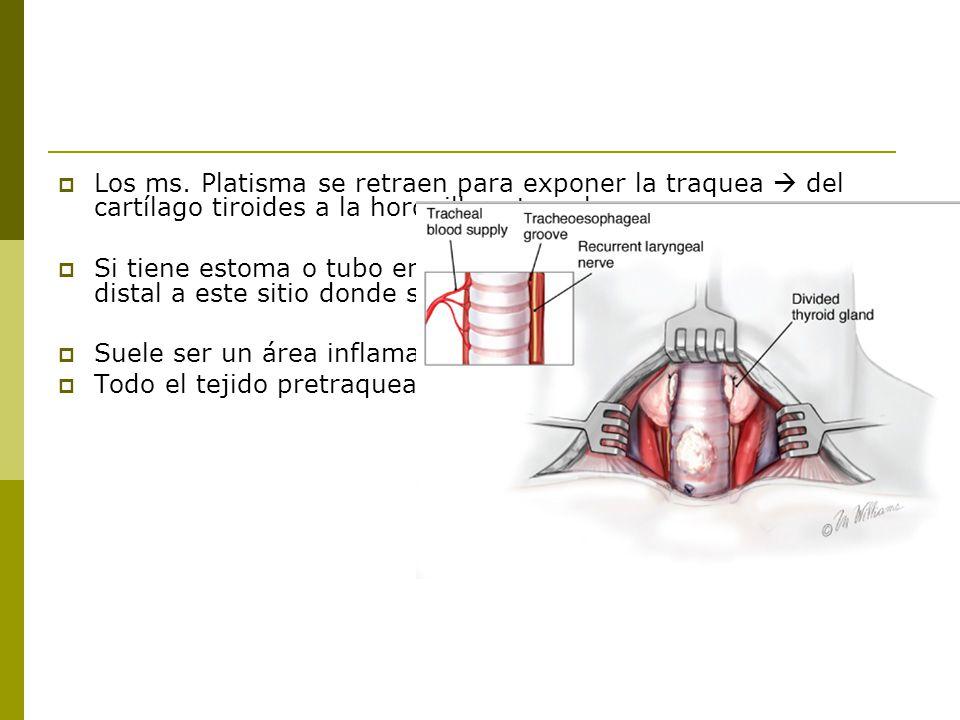 Los ms. Platisma se retraen para exponer la traquea  del cartílago tiroides a la horquilla esternal.