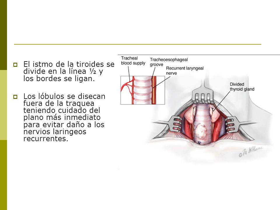 El istmo de la tiroides se divide en la línea ½ y los bordes se ligan.