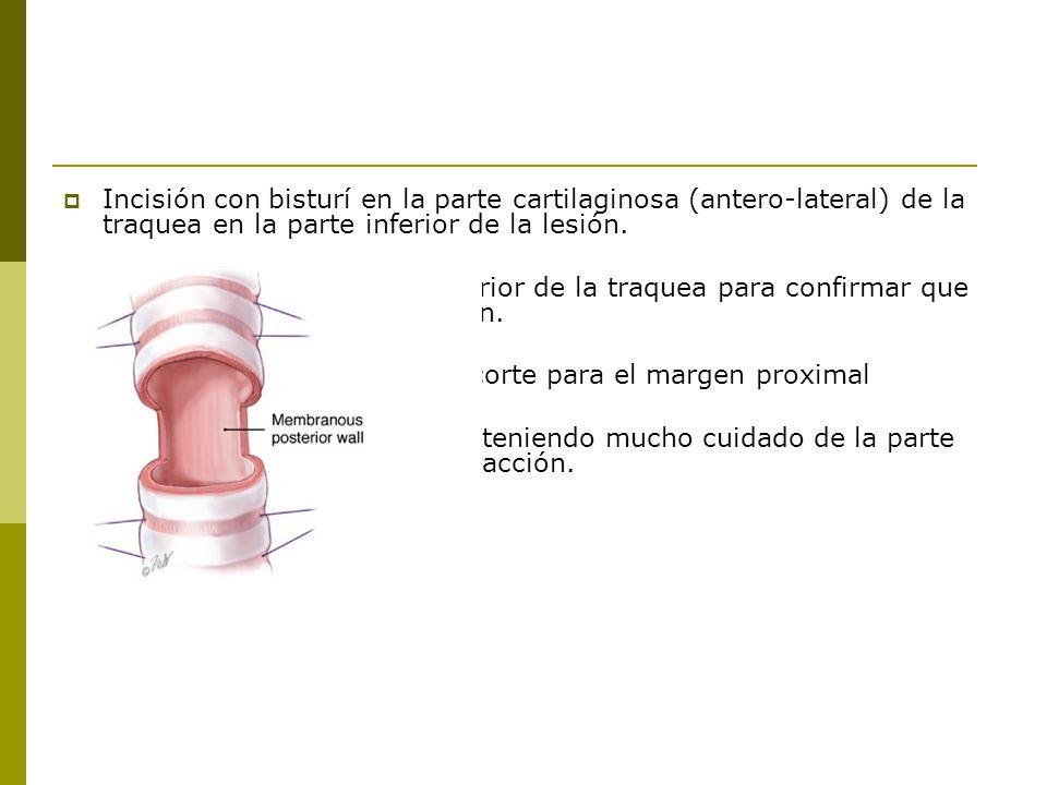 Incisión con bisturí en la parte cartilaginosa (antero-lateral) de la traquea en la parte inferior de la lesión.