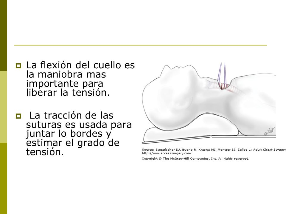 La flexión del cuello es la maniobra mas importante para liberar la tensión.