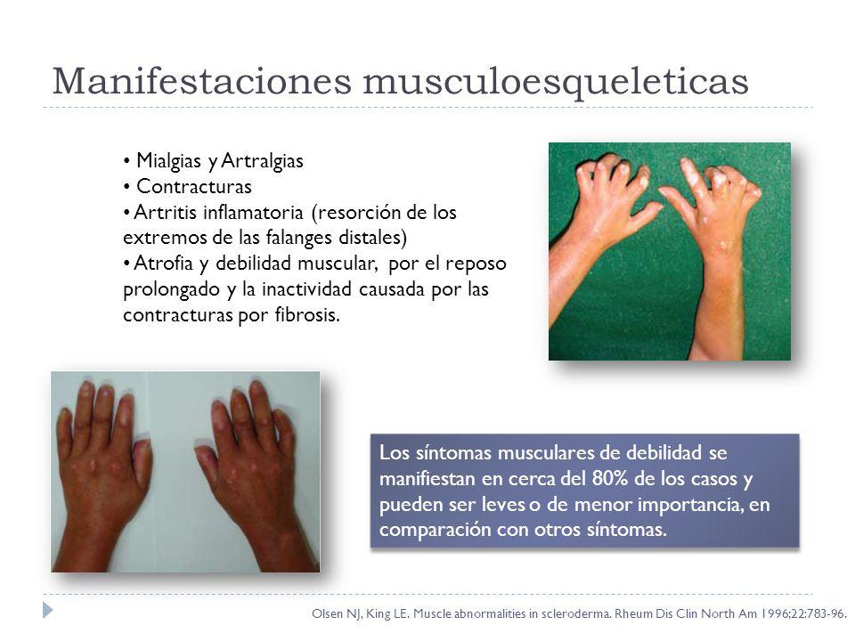 Manifestaciones musculoesqueleticas