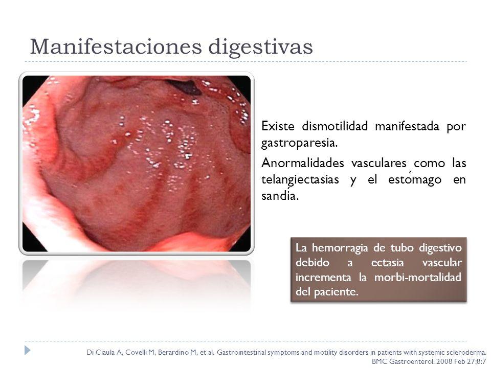 Manifestaciones digestivas