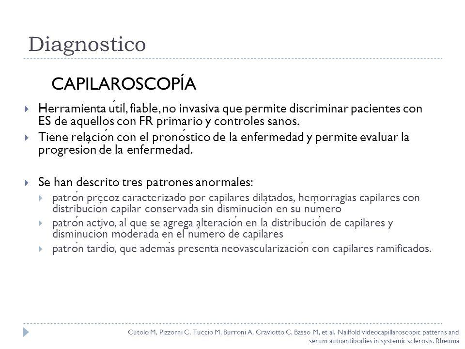 Diagnostico CAPILAROSCOPÍA