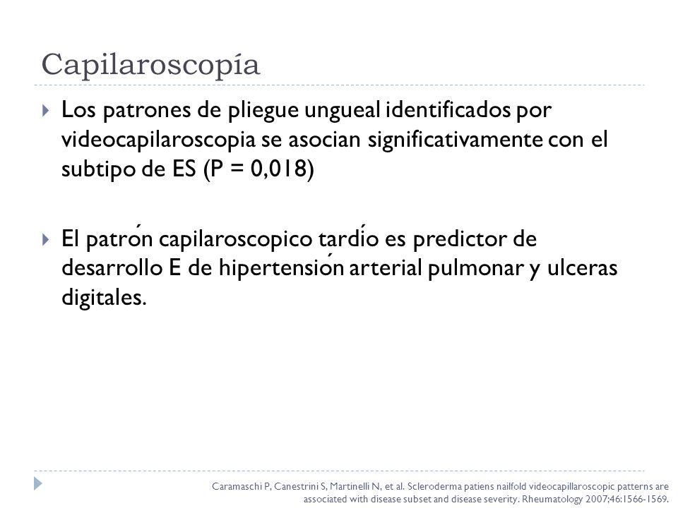 Capilaroscopía Los patrones de pliegue ungueal identificados por videocapilaroscopia se asocian significativamente con el subtipo de ES (P = 0,018)