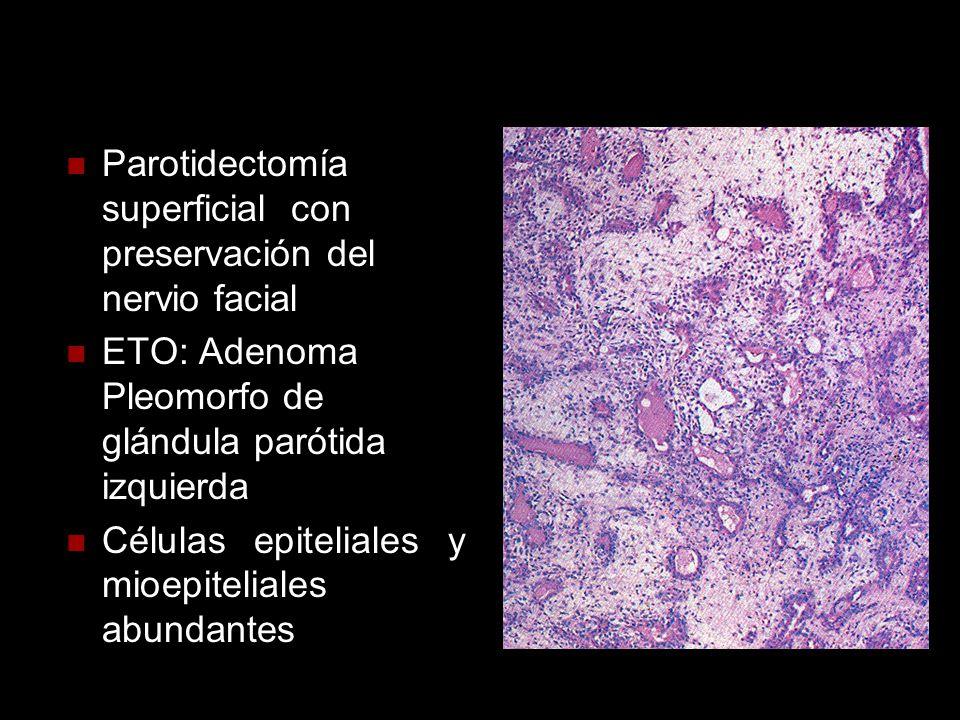 Parotidectomía superficial con preservación del nervio facial