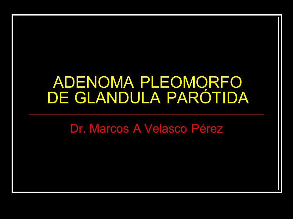 ADENOMA PLEOMORFO DE GLANDULA PARÓTIDA