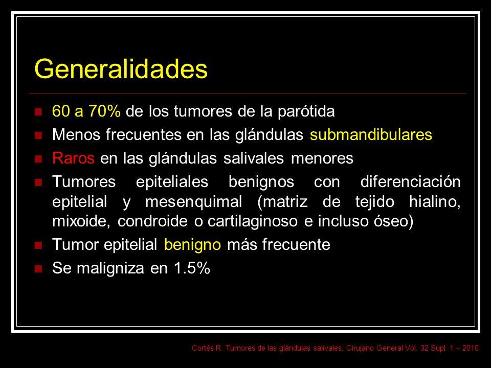 Generalidades 60 a 70% de los tumores de la parótida