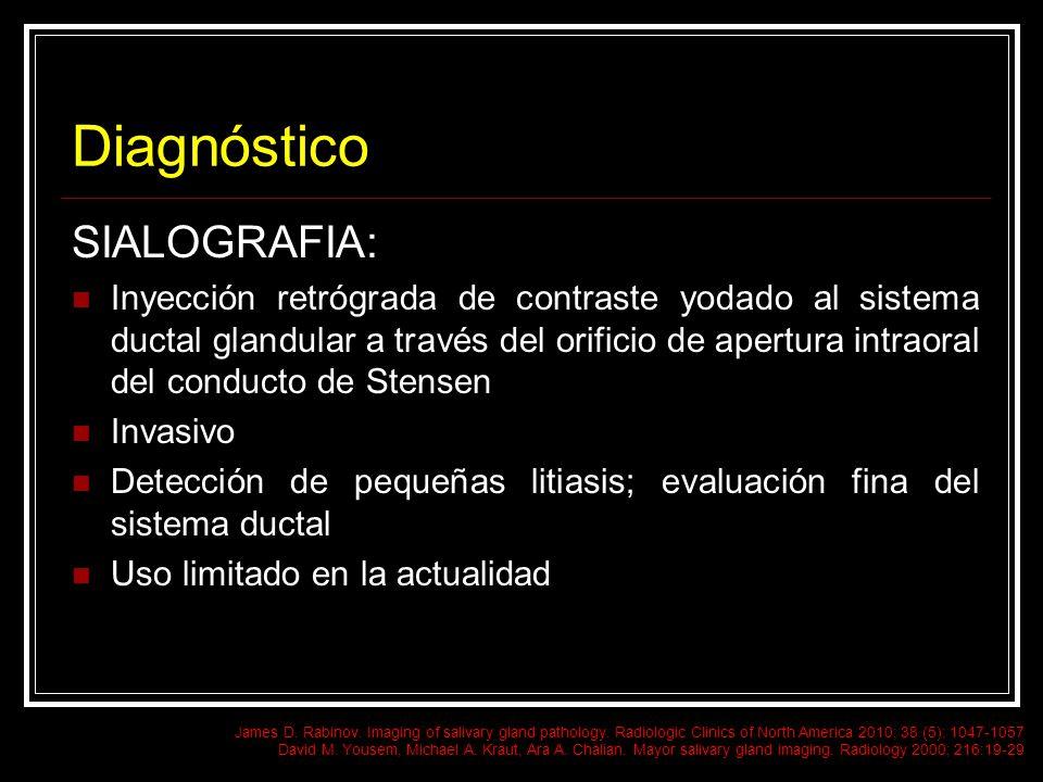 Diagnóstico SIALOGRAFIA: