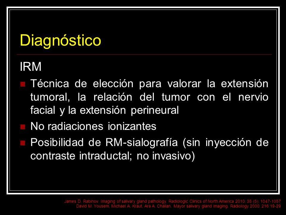 Diagnóstico IRM. Técnica de elección para valorar la extensión tumoral, la relación del tumor con el nervio facial y la extensión perineural.