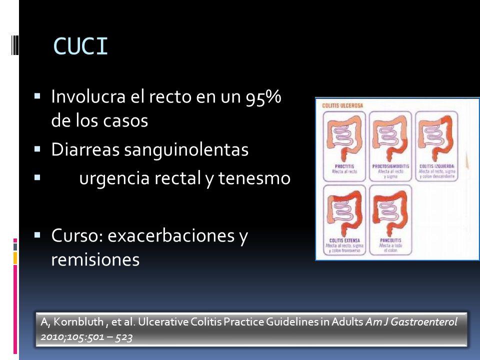 CUCI Involucra el recto en un 95% de los casos Diarreas sanguinolentas