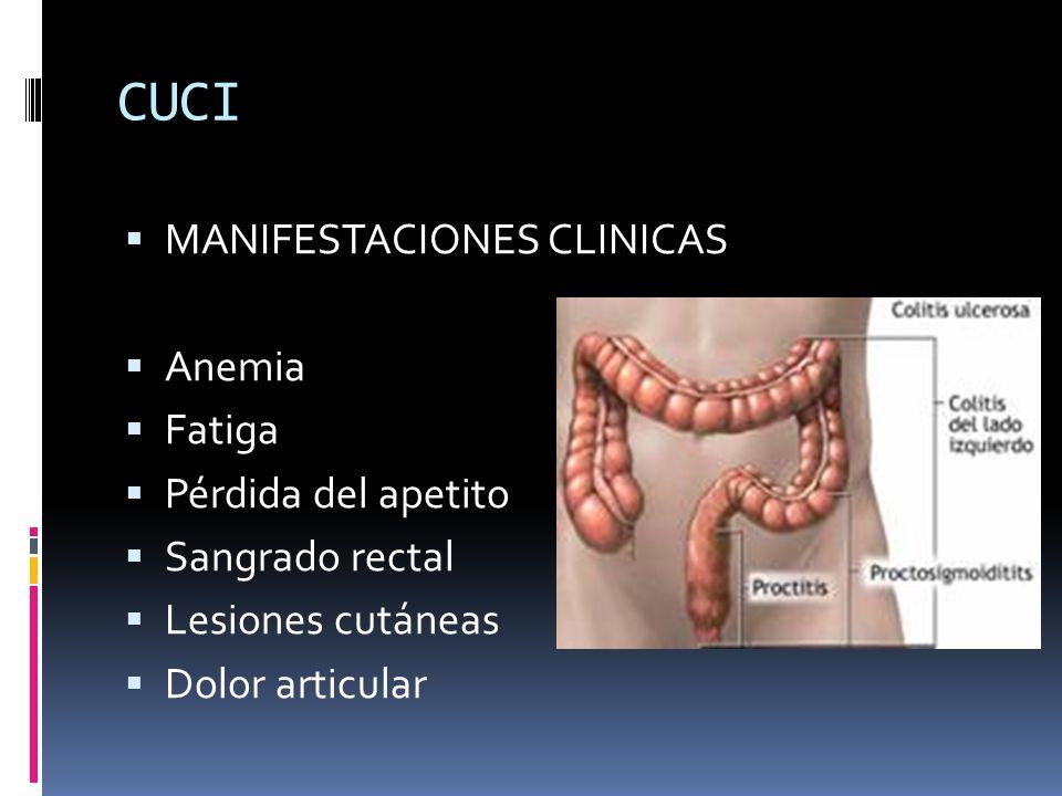 CUCI MANIFESTACIONES CLINICAS Anemia Fatiga Pérdida del apetito
