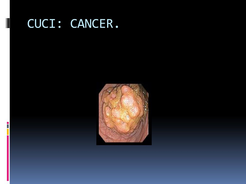 CUCI: CANCER.