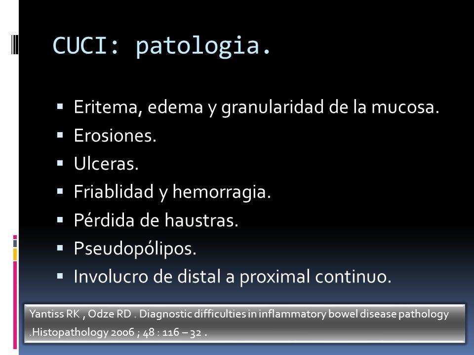 CUCI: patologia. Eritema, edema y granularidad de la mucosa.