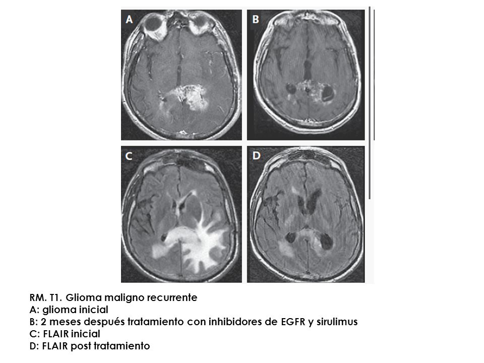 Panels A through D show MRI scans in a patient with a recurrent malignant glioma who was treated with a combination