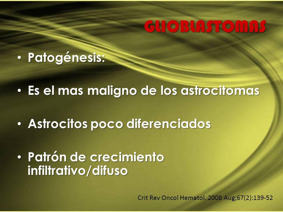 GLIOBLASTOMAS Patogénesis: Es el mas maligno de los astrocitomas