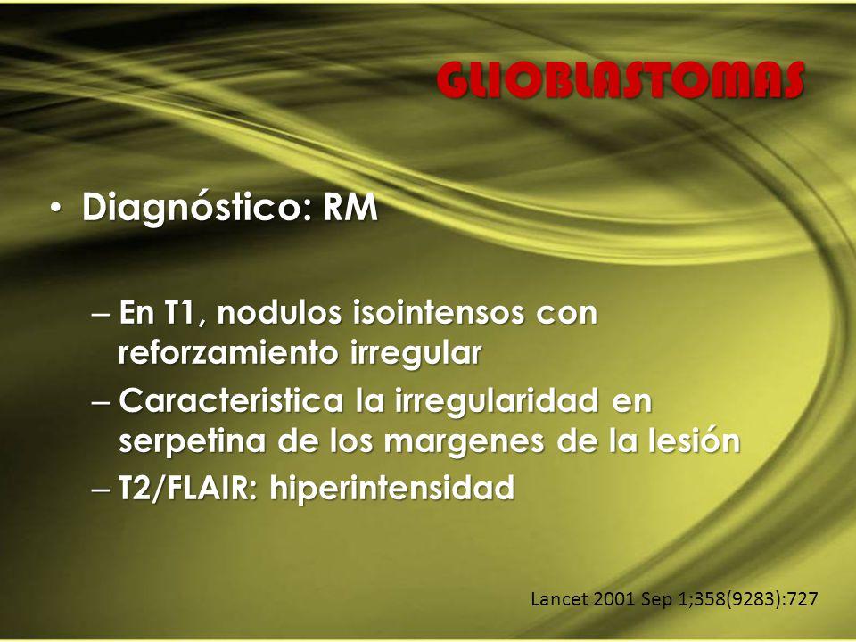 GLIOBLASTOMAS Diagnóstico: RM