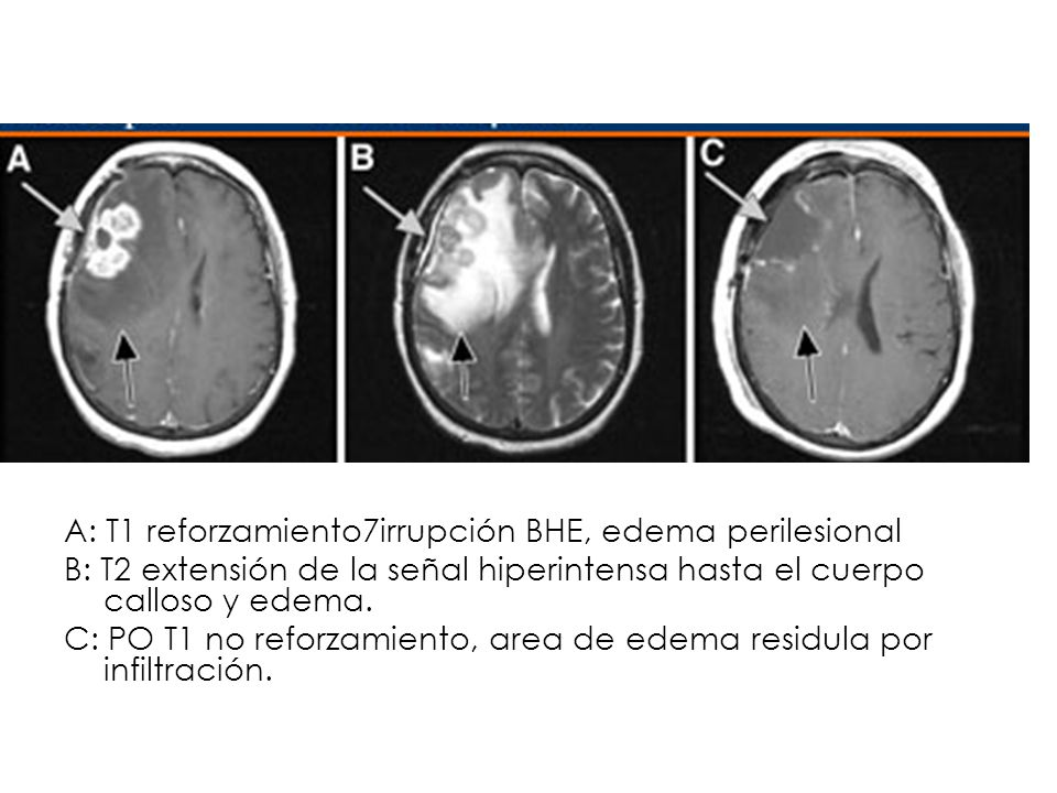 Pre- and postoperative MRI images of glioblastoma multiforme (GBM) tumor. (A) Pre-operative T1-weighted MRI scan of GBM tumor. The area of contrast enhancement (grey arrow) corresponds to frank tumor with disruption of the blood-brain barrier. The surrounding brain tissue into which GBM cells are invading is clearly edematous (black arrow). (B) Pre-operative T2-weighted MRI scan of the same tumor. In this series, the frank tumor (grey arrow) and the surrounding brain tissue with edema and invading tumor cells (black arrow) are both bright. Note that the abnormal signal area extends across the corpus callosum into the contralateral hemisphere. (C) Post-operative T1-weighted MRI scan. The region of frank tumor has been resected resulting in the absence of contrast enhancement (grey arrow) but residual areas of edema and residual infiltrating tumor remain (black arrow).
