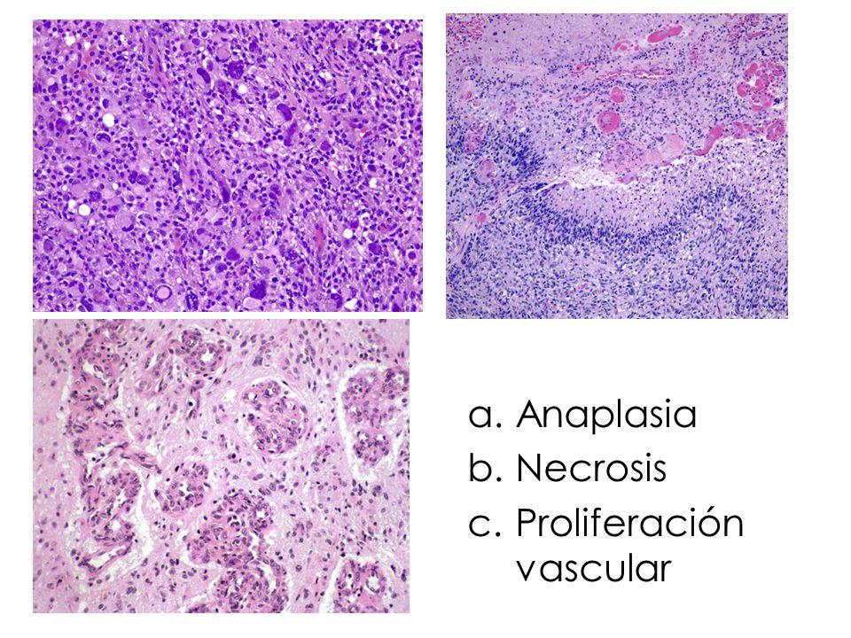 Proliferación vascular