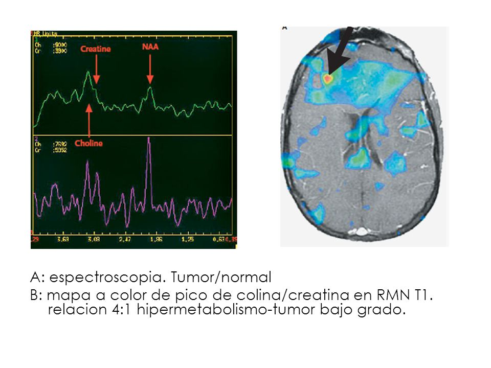 A: espectroscopia. Tumor/normal B: mapa a color de pico de colina/creatina en RMN T1.