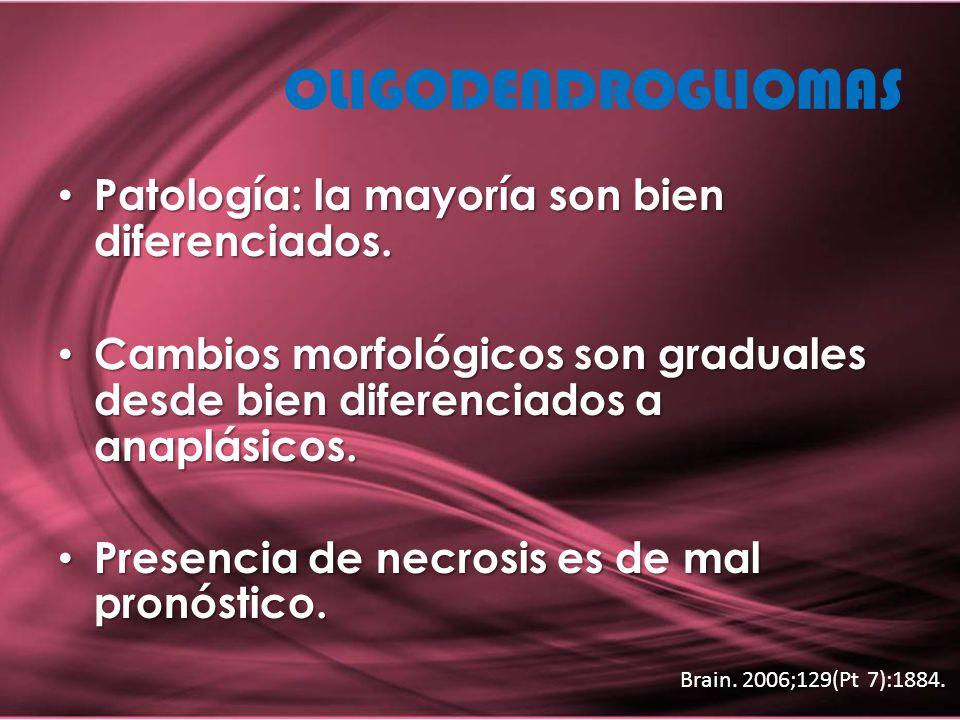 OLIGODENDROGLIOMAS Patología: la mayoría son bien diferenciados.