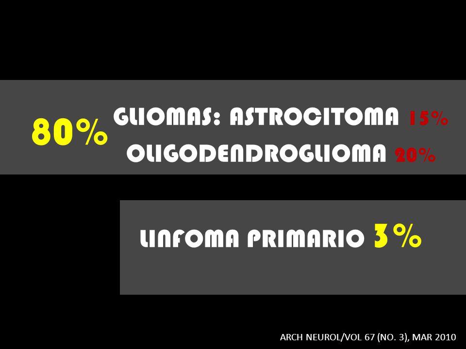GLIOMAS: ASTROCITOMA 15% OLIGODENDROGLIOMA 20% LINFOMA PRIMARIO 3%