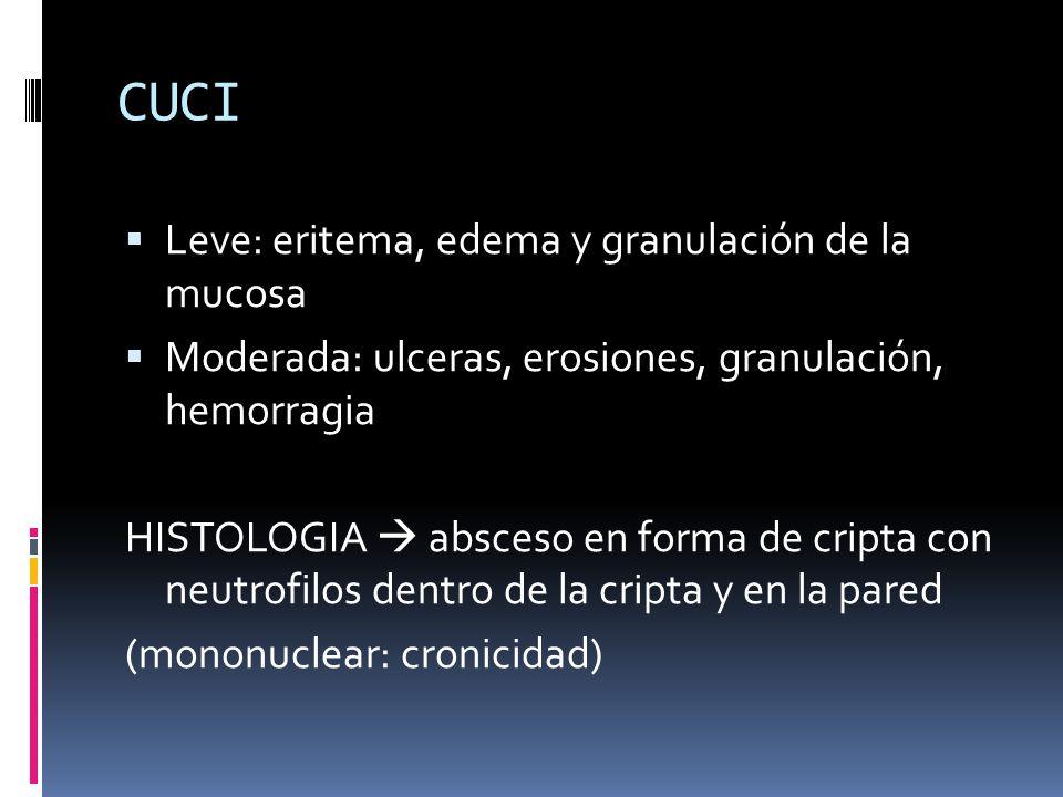 CUCI Leve: eritema, edema y granulación de la mucosa
