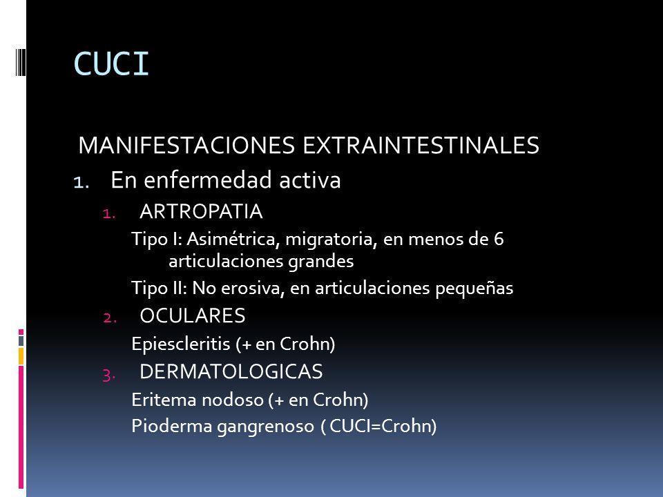 CUCI MANIFESTACIONES EXTRAINTESTINALES En enfermedad activa ARTROPATIA