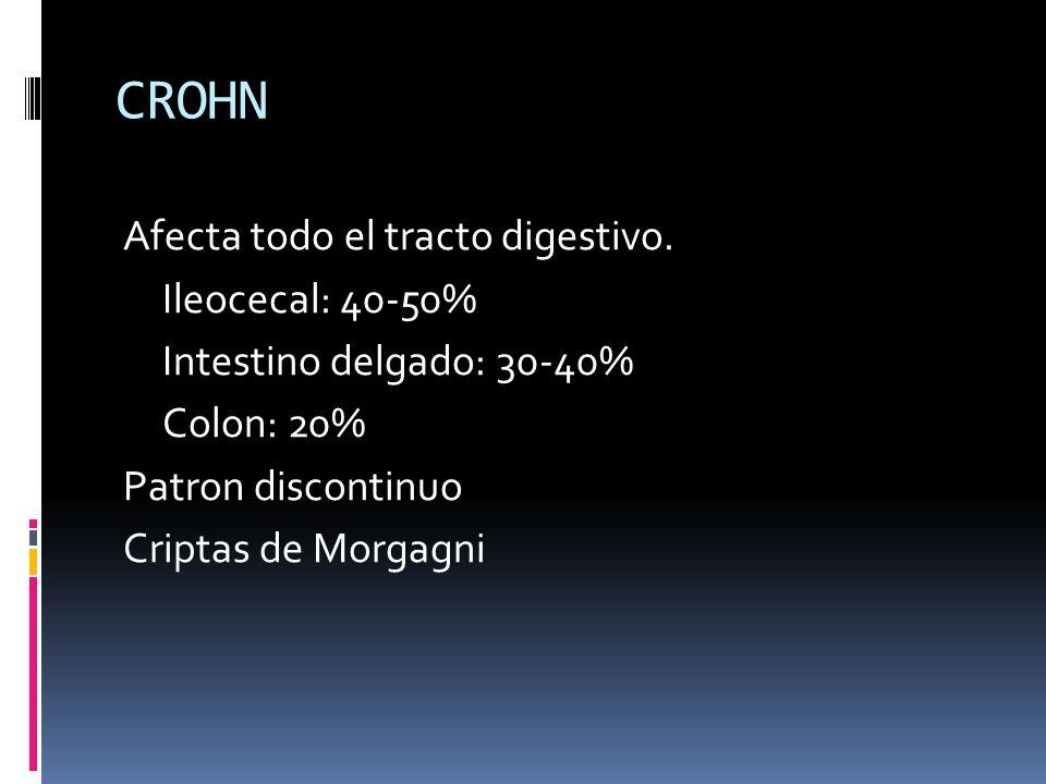 CROHN Afecta todo el tracto digestivo. Ileocecal: 40-50% Intestino delgado: 30-40% Colon: 20% Patron discontinuo Criptas de Morgagni