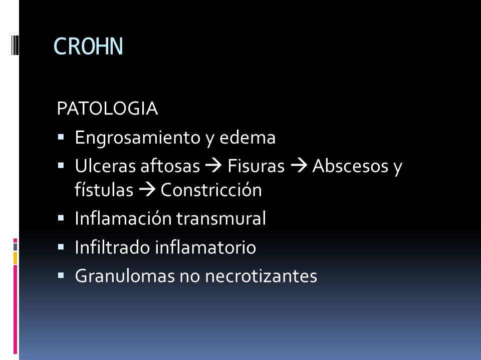 CROHN PATOLOGIA Engrosamiento y edema