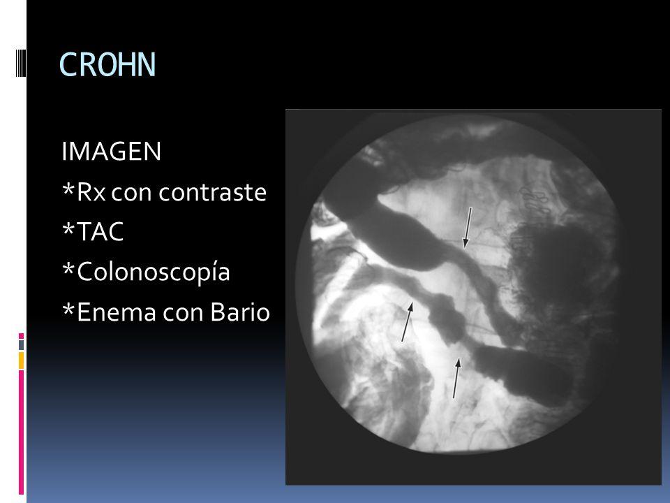 CROHN IMAGEN *Rx con contraste *TAC *Colonoscopía *Enema con Bario