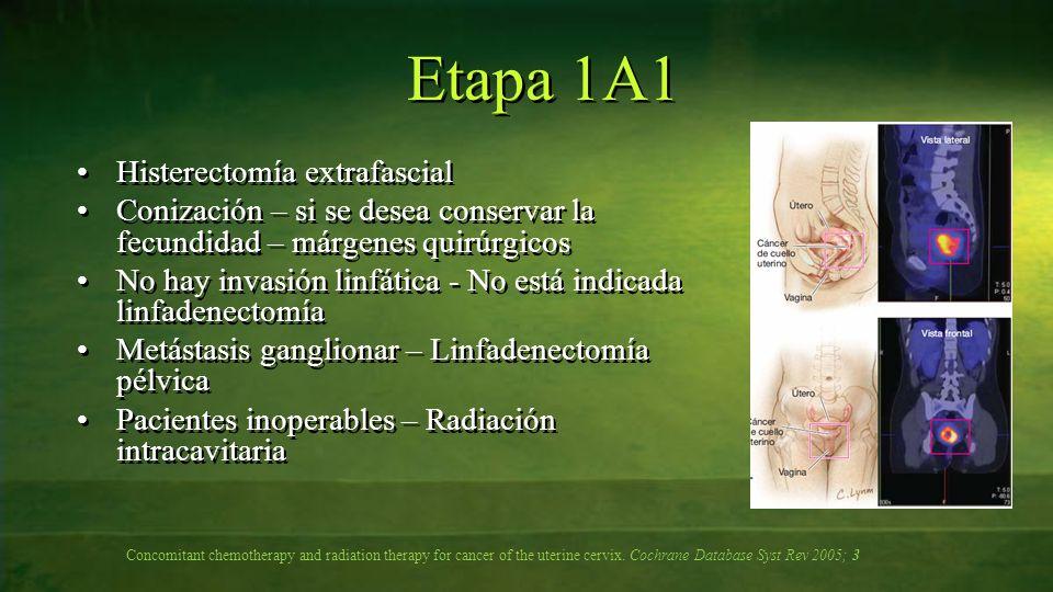 Etapa 1A1 Histerectomía extrafascial