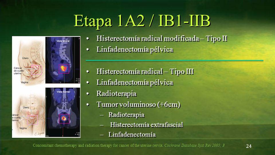 Etapa 1A2 / IB1-IIB Histerectomía radical modificada – Tipo II