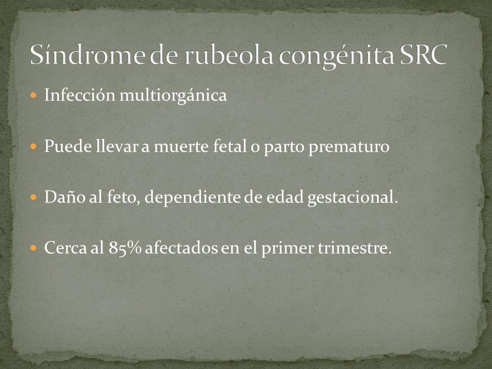 Síndrome de rubeola congénita SRC