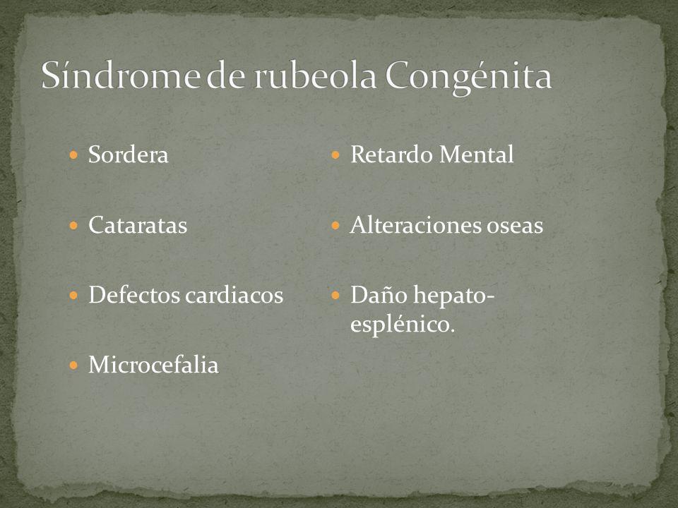 Síndrome de rubeola Congénita