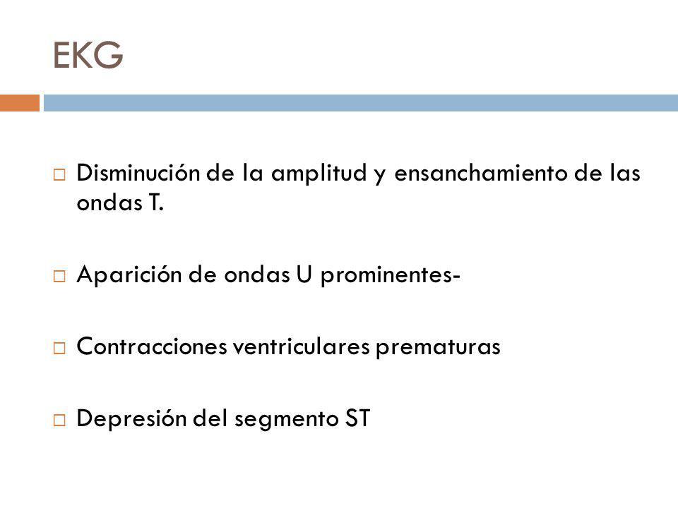 EKG Disminución de la amplitud y ensanchamiento de las ondas T.