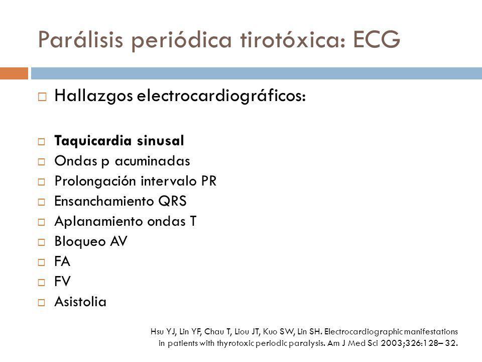Parálisis periódica tirotóxica: ECG