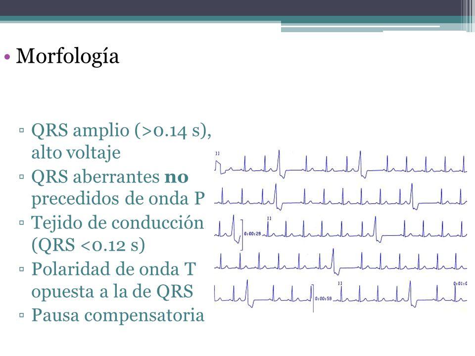 Morfología QRS amplio (>0.14 s), alto voltaje