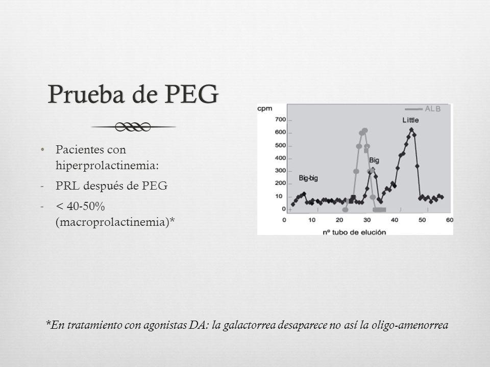 Prueba de PEG Pacientes con hiperprolactinemia: PRL después de PEG