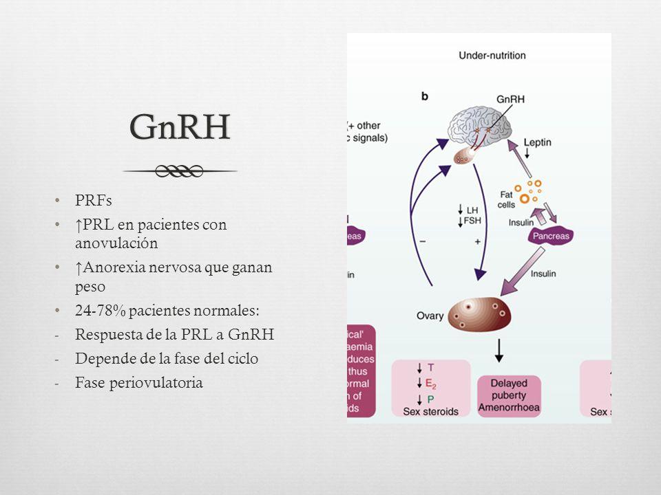 GnRH PRFs ↑PRL en pacientes con anovulación