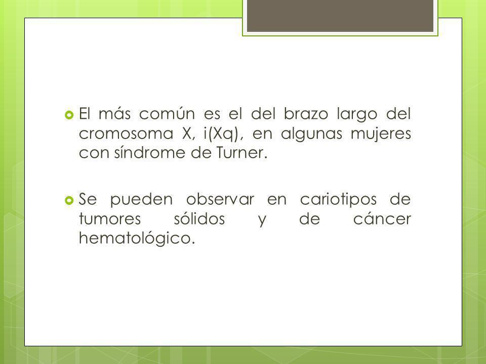 El más común es el del brazo largo del cromosoma X, i(Xq), en algunas mujeres con síndrome de Turner.
