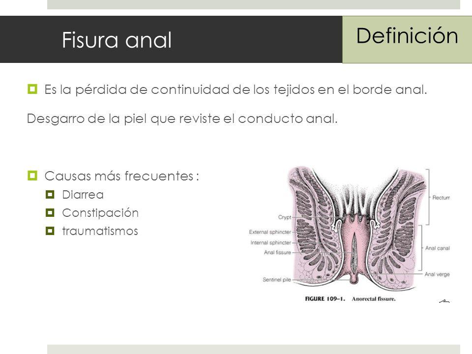 Fisura anal Definición