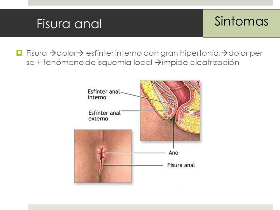 Fisura anal Sintomas.