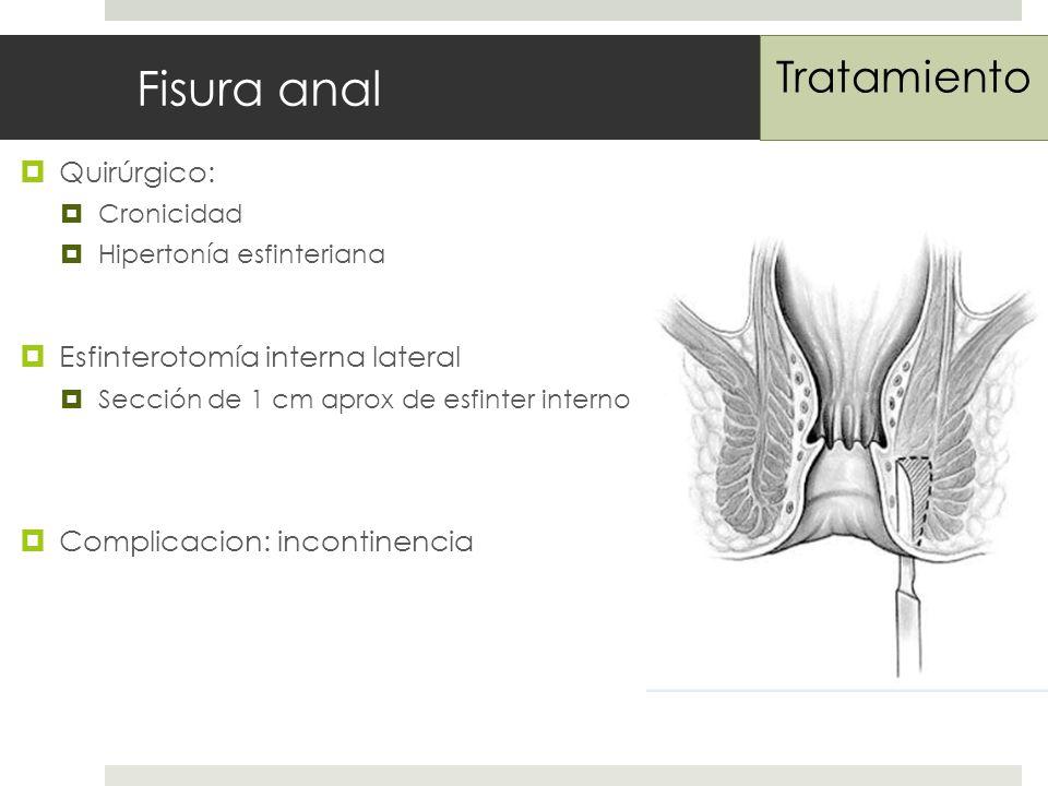Fisura anal Tratamiento Quirúrgico: Esfinterotomía interna lateral