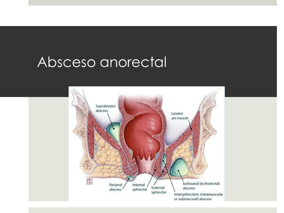 Absceso anorectal