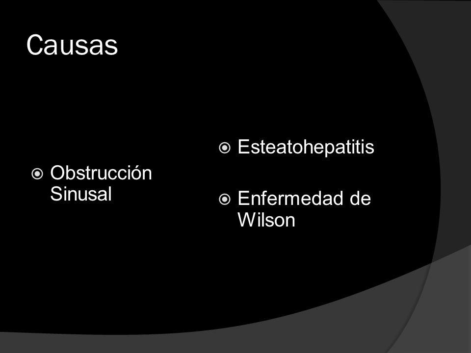 Causas Esteatohepatitis Obstrucción Sinusal Enfermedad de Wilson