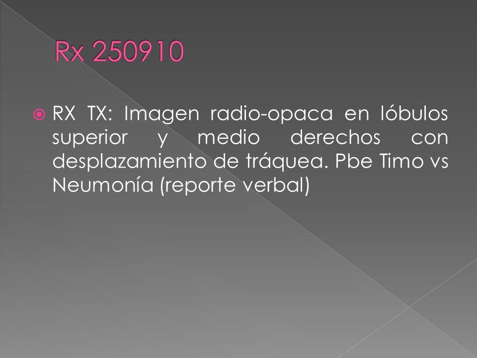 Rx 250910 RX TX: Imagen radio-opaca en lóbulos superior y medio derechos con desplazamiento de tráquea.