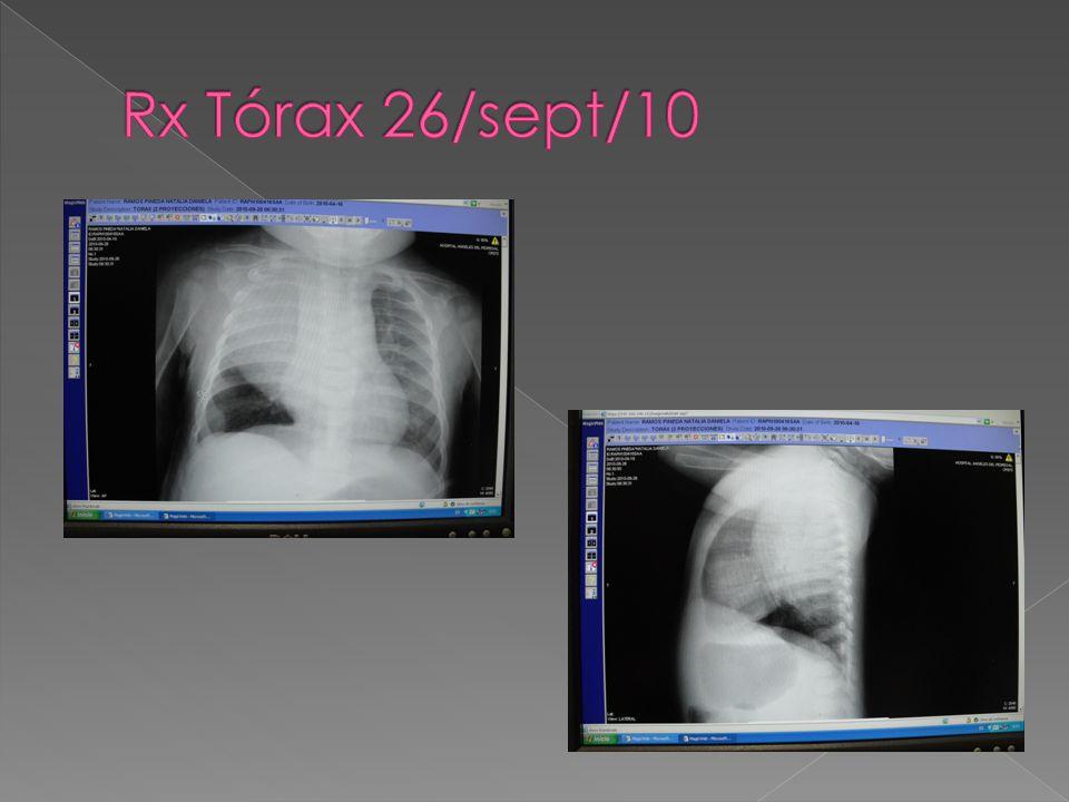 Rx Tórax 26/sept/10